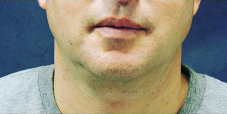 Front view of chin of male patient after Sculpsure treatment