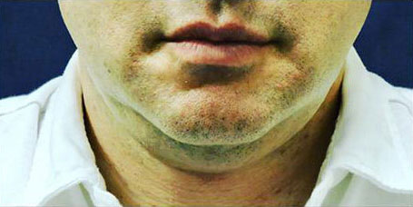 Front view of chin of male patient before Sculpsure treatment