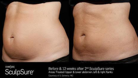 SculpSure before and 12 weeks after female abdomen