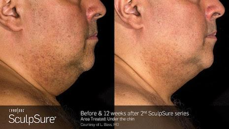 SculpSure Before and 12 weeks after male chin treatment