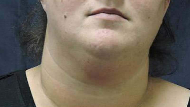 Female's double chin after SculpSure non-surgical treatment at Elkins Park Family Medicine