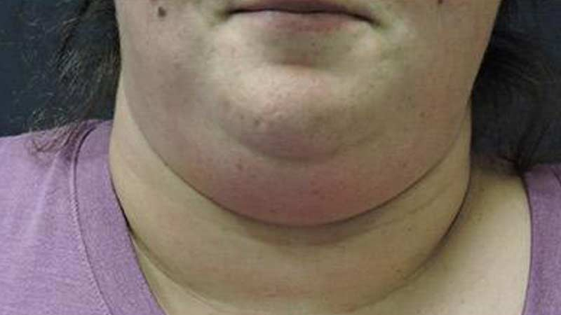 Female's double chin before SculpSure non-surgical treatment at Elkins Park Family Medicine