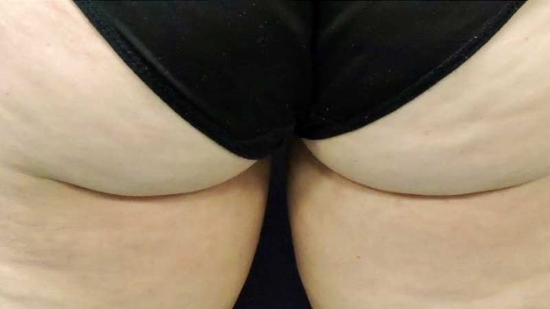 Female posterior after SculpSure treatment at Elkins Park Family Medicine