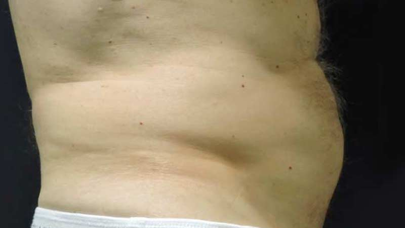 Profile view of a male's abdomen after SculpSure treatment at Elkins Park Family Medicine