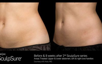 5 Reasons Why Body Sculpting with SculpSure Remains So Popular