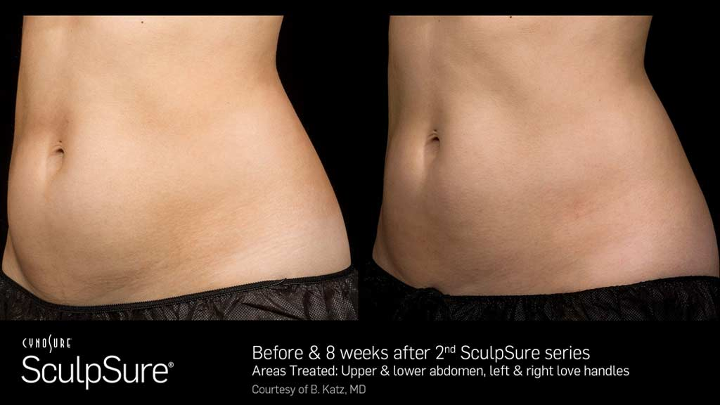 Young woman SculpSure before and 8 weeks after comparison